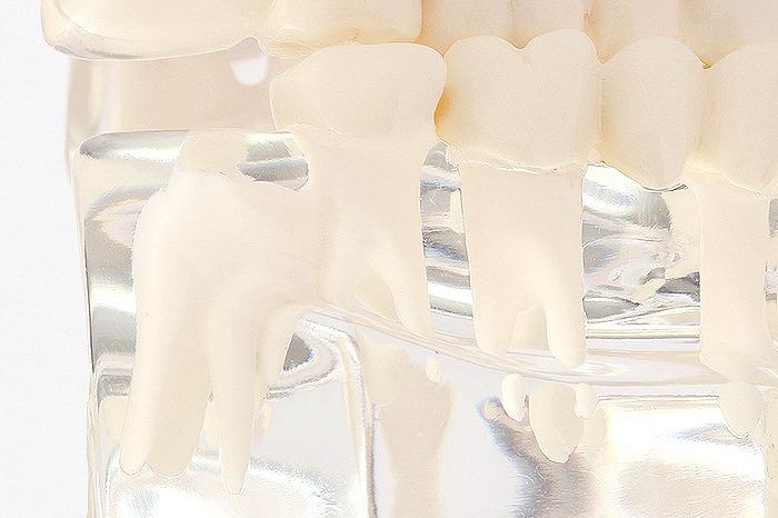 親知らずの抜歯について
