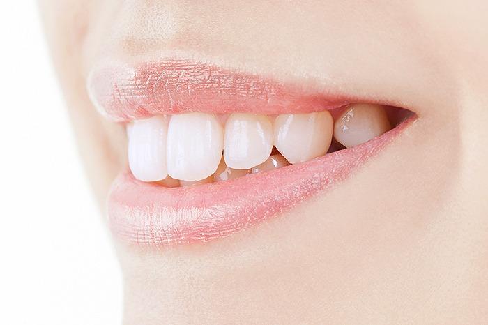 専用の薬剤を塗布することで歯を白くする方法です